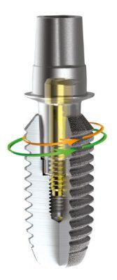 Implant cu formă conică și spire autoforante.