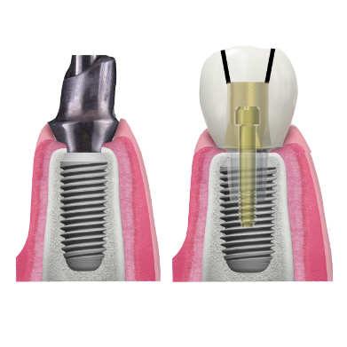 RESTAURĂRI PROTETICE CIMENTATE PE IMPLANTURI argon dental